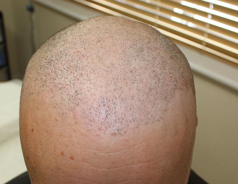 Hair Transplant Poole
