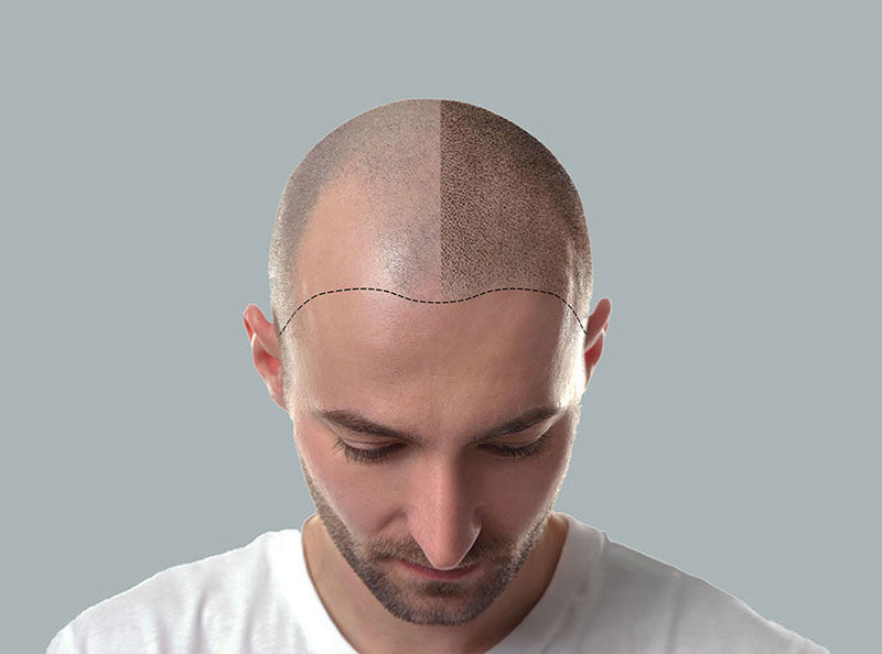 Scalp Pigmentation in Bournemouth